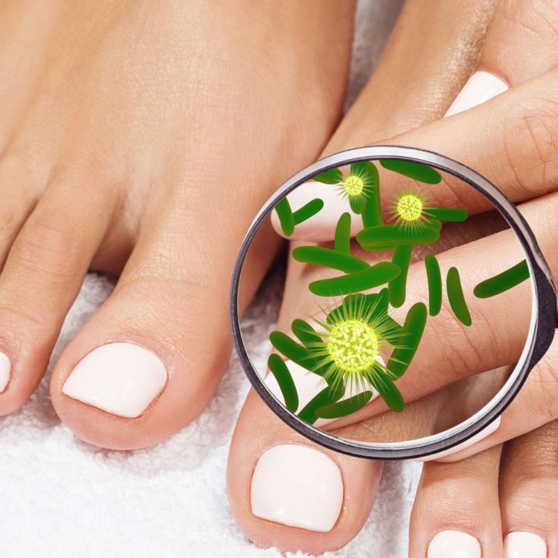 Fungal-Nail-Testing-&-Treatment2