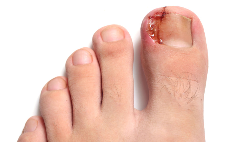 INGROWING TOENAILS….OUCH!